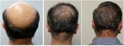 body-hair-transplant-ugraft.jpg